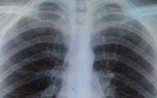 Can physiotherapy help with respiratory conditions?
